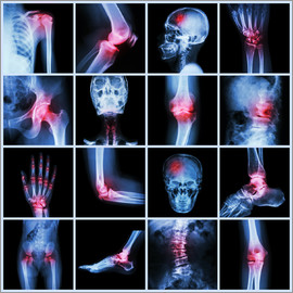 Human joint, arthritis and stroke