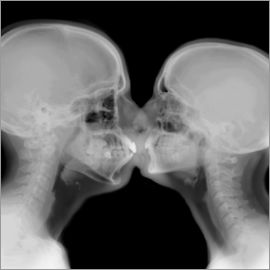 PhotoStock-Israel - X-ray of a couple kissing