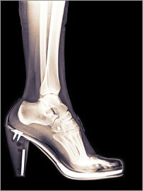 PhotoStock-Israel - high heel shoe X-ray
