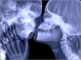 Gustoimages - Lovers kissing, X-ray