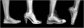 PhotoStock-Israel - Various shoes (radiograph)