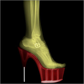 PhotoStock-Israel - X-ray Stiletto High-Heeled Shoe