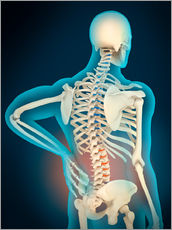 Gallery print  Inflammation in human back area - Stocktrek Images