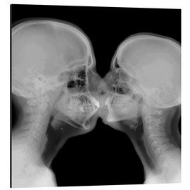 Alu-Dibond  X-ray of a couple kissing - PhotoStock-Israel
