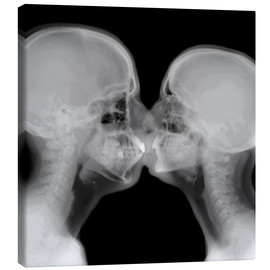 Canvas print  X-ray of a couple kissing - PhotoStock-Israel
