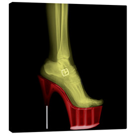 Canvas  X-ray Stiletto High-Heeled Shoe - PhotoStock-Israel