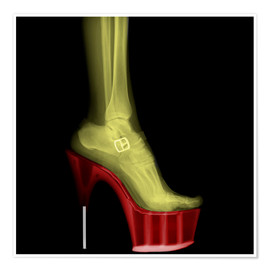 Poster  X-ray Stiletto High-Heeled Shoe - PhotoStock-Israel