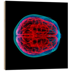 Wood print  Brain perfusion