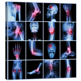 Canvas  Human joint, arthritis and stroke