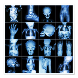 Premium poster  Xrays of a child body