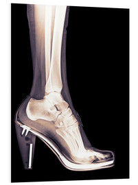 Forex  high heel shoe X-ray - PhotoStock-Israel